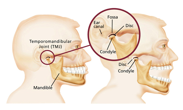 tmj disorder or tmd tmj relief clinic melbourne : tmj disorder diagram - findchart.co